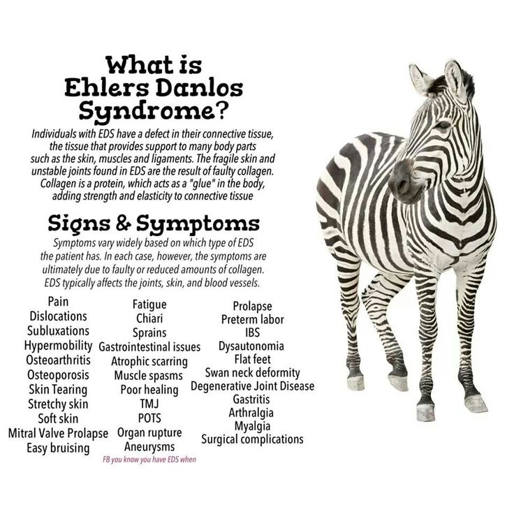Ehlers-Danlos syndrome: My 47-year search for the right