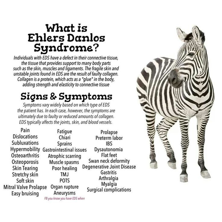 Image result for ehlers danlos syndrome