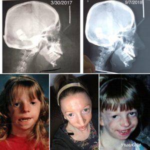 craniofacial-awareness